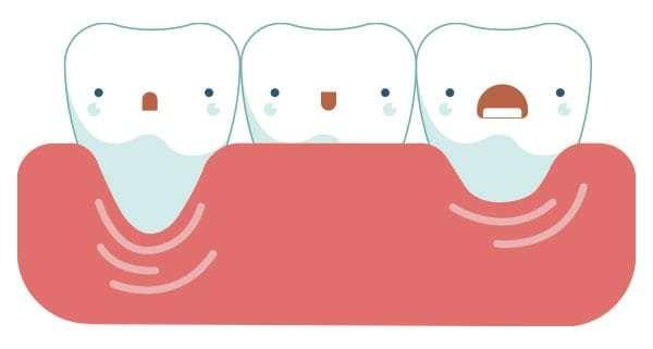 Оголенные шейки зубов