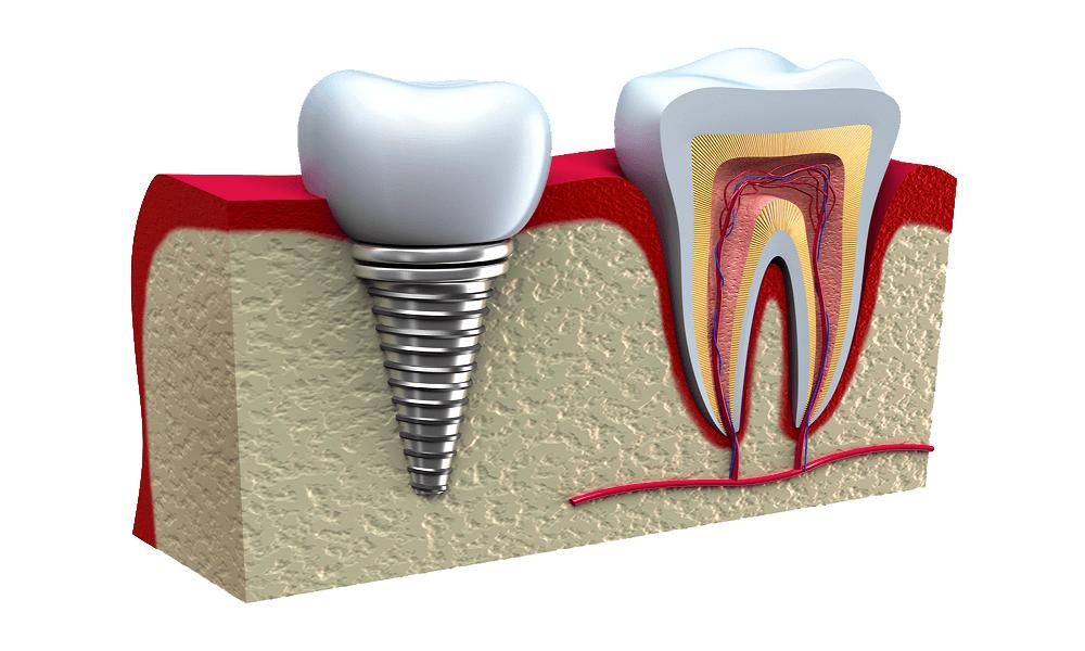 Имплант - искусственный корень зуба