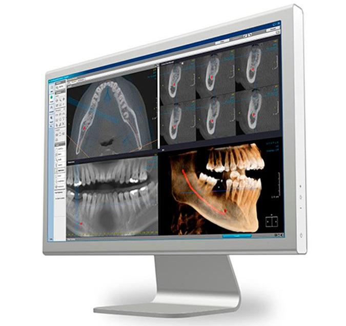 Компьютерная томмография в москве