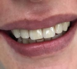 КЕрамические виниры имакс в стоматологии Шагал-дент